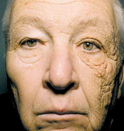 Truck driver with photoaging on window side of face
