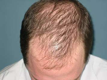 man with moderate hair loss