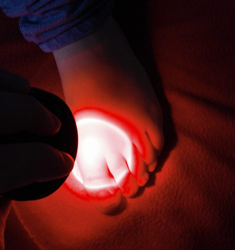 Infrared light mini used on the big toe