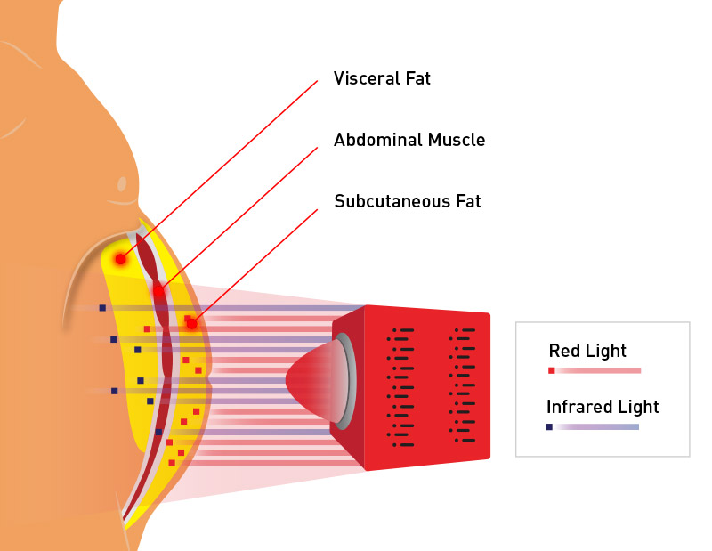 light therapy for belly fat