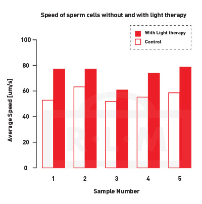 sperm speed with light therapy
