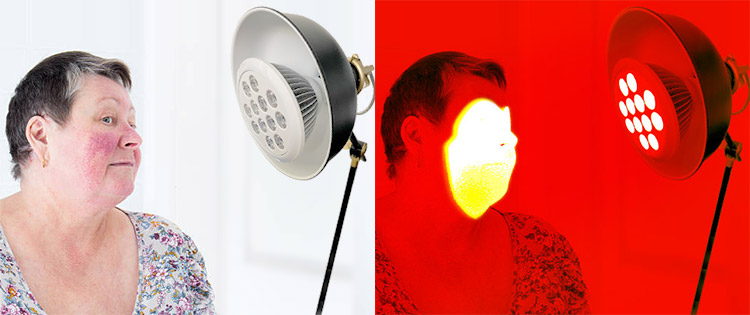 light therapy used for rosacea